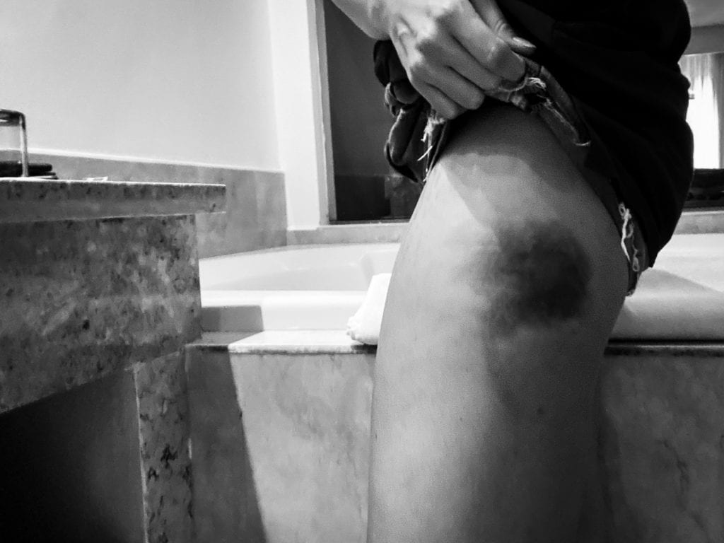 bruise on hip